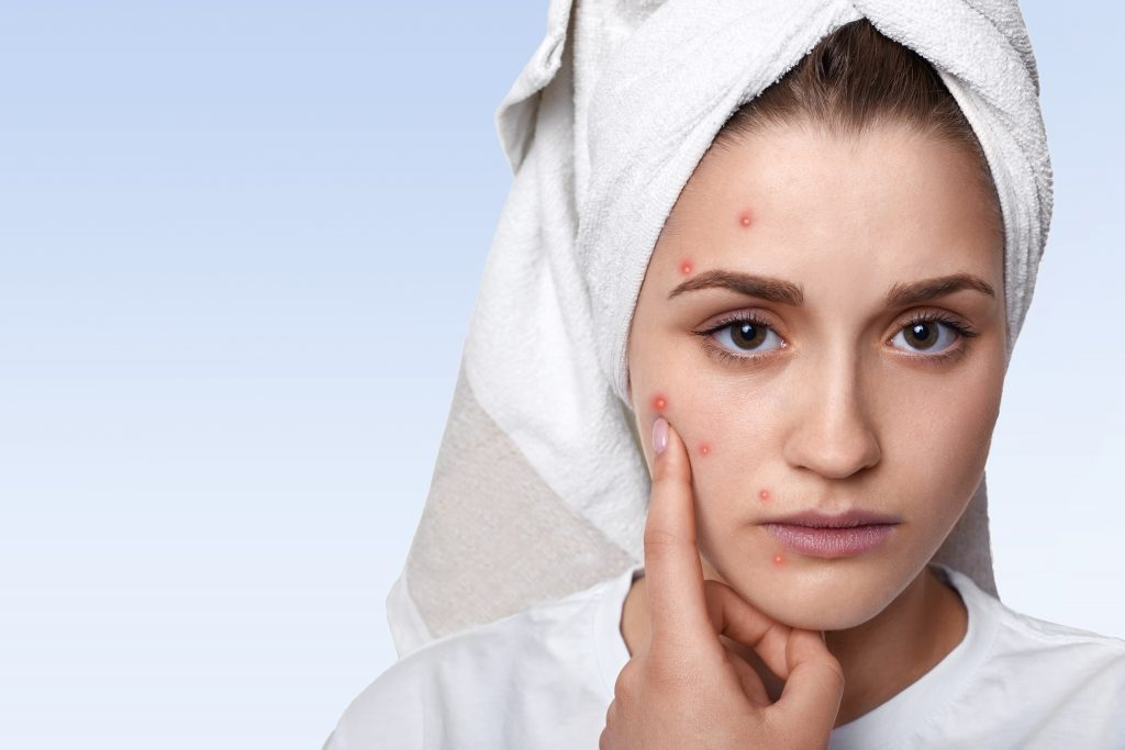 6 Effective Ways to Prevent Acne